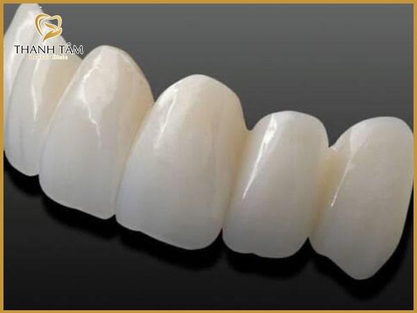 Răng sứ có màu sắc, độ trong mờ như răng thật