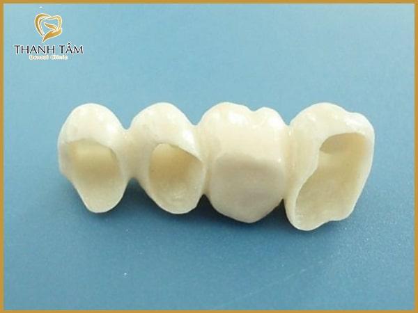 Răng sứ Titan và Zirconia có những ưu và nhược điểm riêng