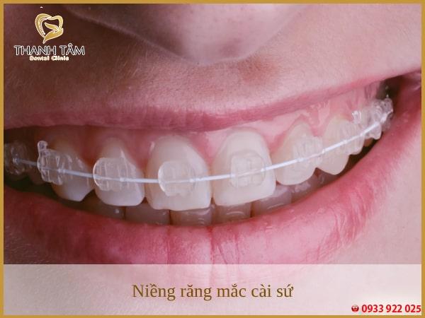 kinh nghiệm niềng răng hô