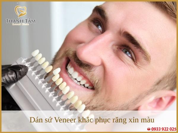 Dán sứ Veneer khắc phục răng xỉn màu