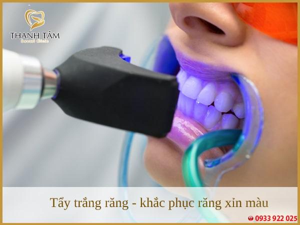 Tẩy trắng răng - cách khắc phục tình trạng răng nhiễm màu thông dụng