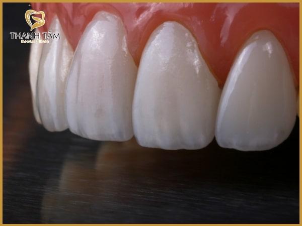 răng sứ Zolid