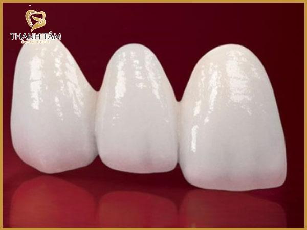 răng sứ Cercon có tốt không