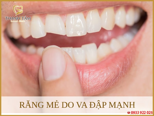 Răng mẻ nhỏ