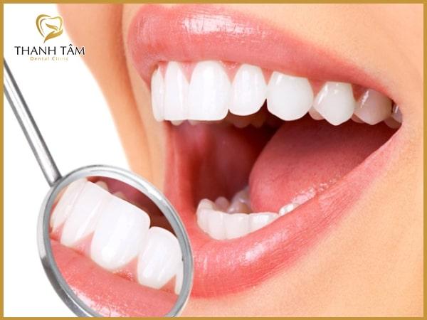 Răng sứ Cercon có tính thẩm mỹ cao