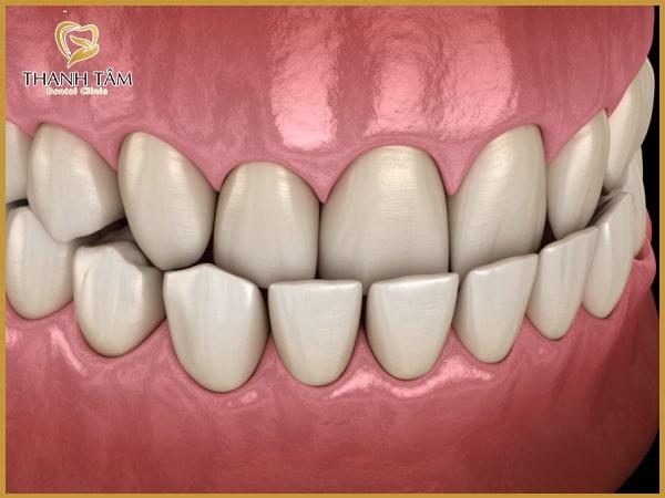 Biểu hiện của răng móm