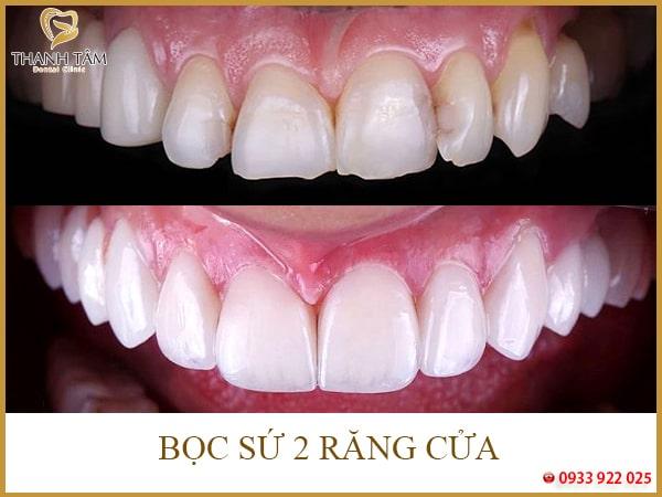 Thẩm mỹ răng sứ trong trường hợp răng cửa bị mẻ