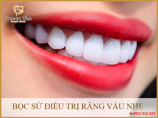 Bọc sứ điều trị răng vẩu nhẹ