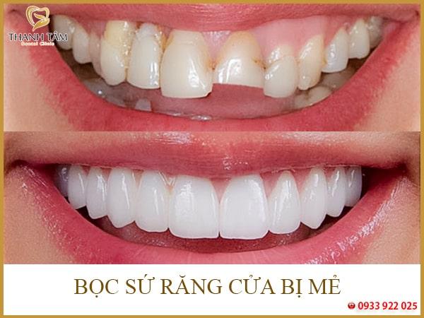 Bọc sứ răng cửa bị mẻ