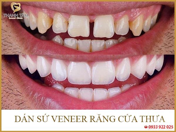 Dán sứ Veneer răng cửa thưa