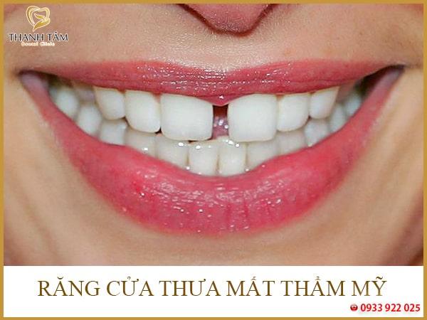 Hậu quả của răng thưa