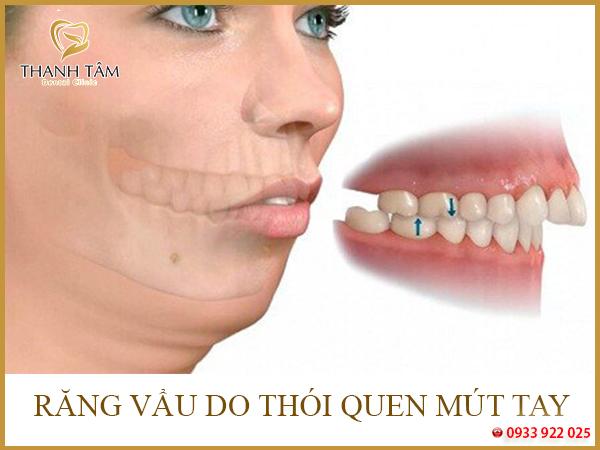 Thói quen xấu gây nên tình trạng răng vẩu