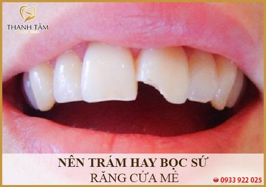 Nên trám hay bọc sứ răng cửa bị mẻ
