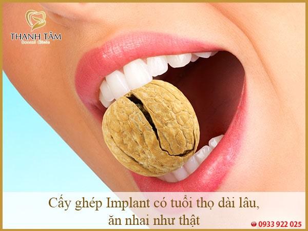 Cấy ghép Implant có tuổi thọ dài lâu, ăn nhai như răng thật