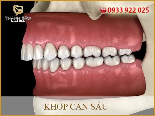 Quy trình niềng răng khớp cắn sâu