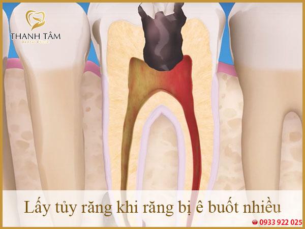 Lấy tủy răng khi răng ê buốt nhiều
