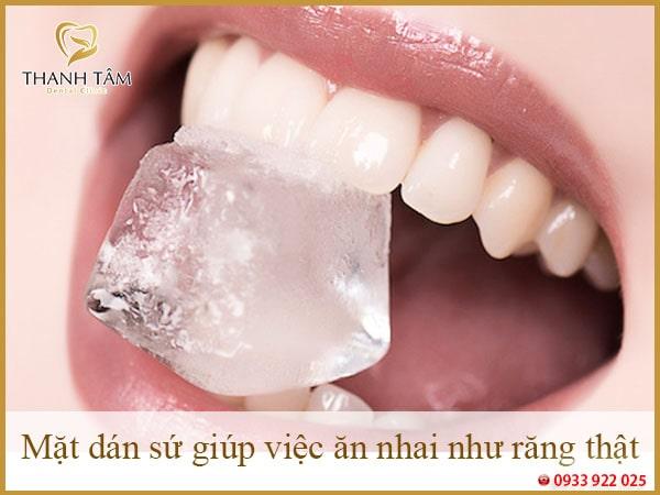 Mặt dán sứ giúp việc ăn nhai như răng thật-min