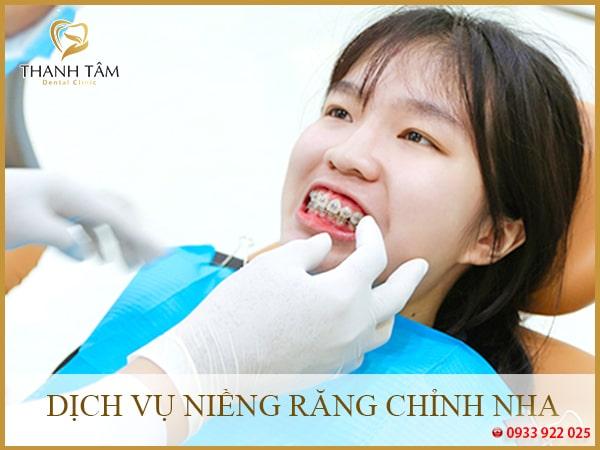 Niềng răng tại nha khoa quận 6