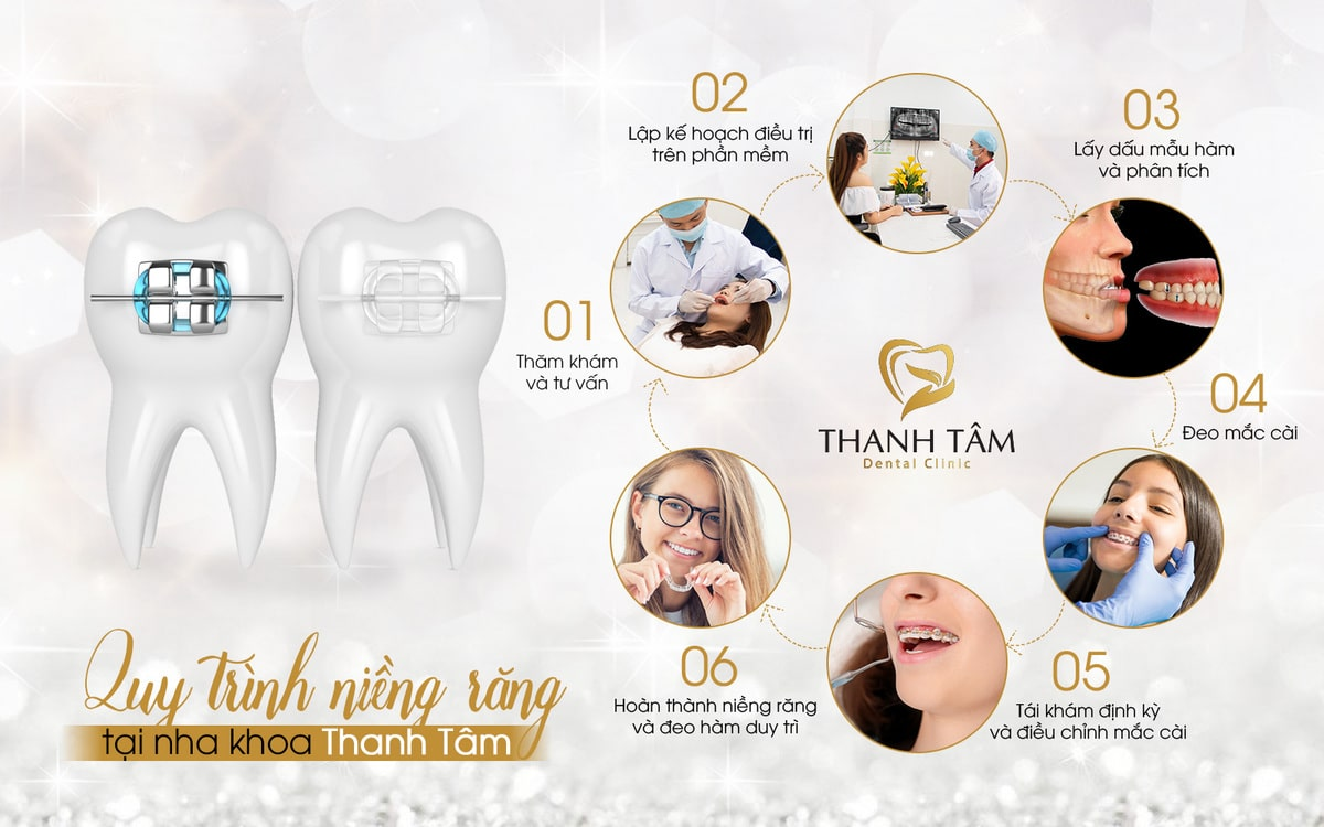 Quy trình niềng răng tại nha khoa Thanh Tâm-min