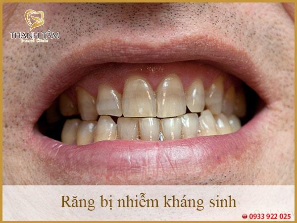 Răng bị nhiễm kháng sinh-min