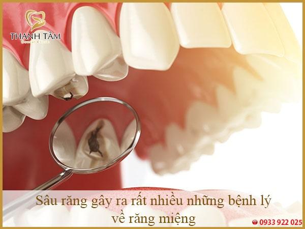 Sâu răng gây ra rất nhiều những bệnh lý về răng miệng-min