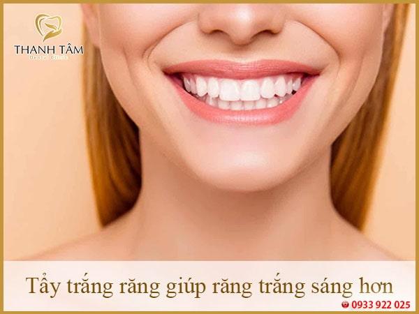 Tẩy trắng răng giúp răng trắng sáng hơn