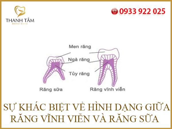 Răng vĩnh viễn