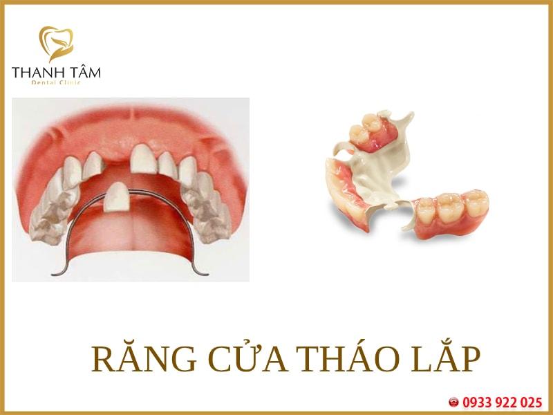 Răng cửa tháo lắp cải thiện tình trạng mất răng hiệu quả