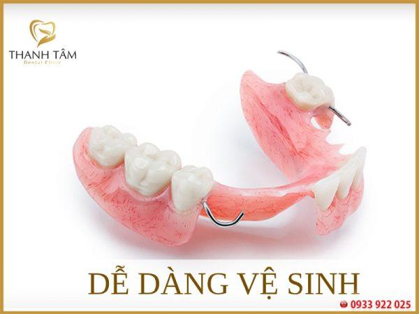 răng cửa tháo lắp dễ dàng vệ sinh răng miệng