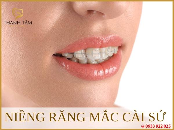 niềng sứ Phương pháp khắc phục hiệu quả các khuyết điểm răng