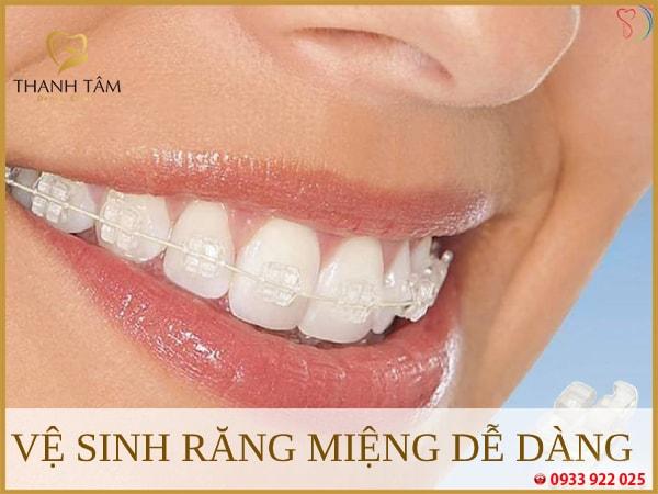 niềng răng mắc cài sứ tự buộc Dễ dàng vệ sinh răng miệng