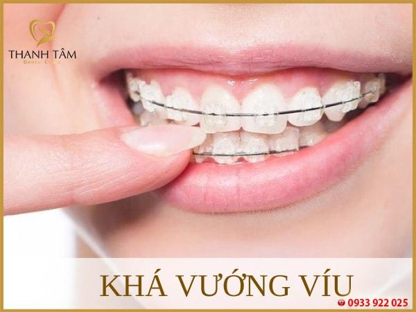 niềng răng mắc cài sứ tự buộc vướng víu trong khoang miệng