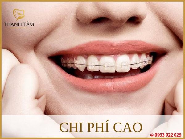 niềng răng mắc cài sứ tự buộc chi phí phục hình cao