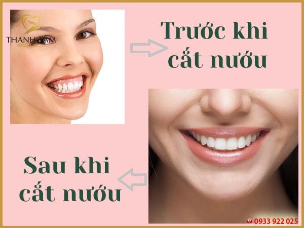 Cắt nướu điều trị tình trạng cười hở lợi