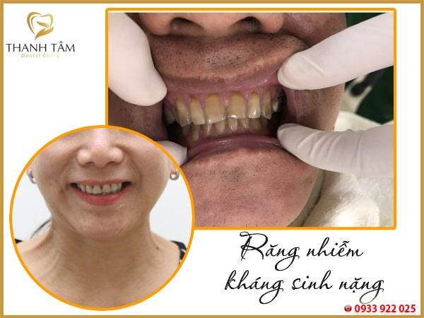 răng nhiễm kháng sinh nặng