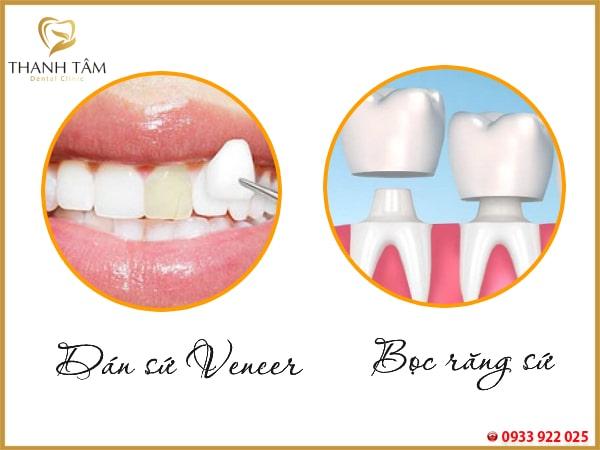 Cách khắc phục răng nhiễm kháng sinh nặng