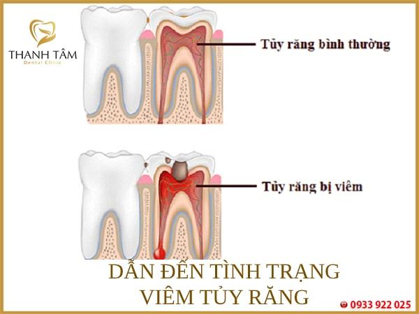 Dẫn đến viêm tủy răng