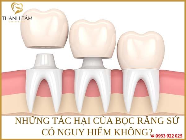 Những tác hại của bọc răng sứ có nguy hiểm không?
