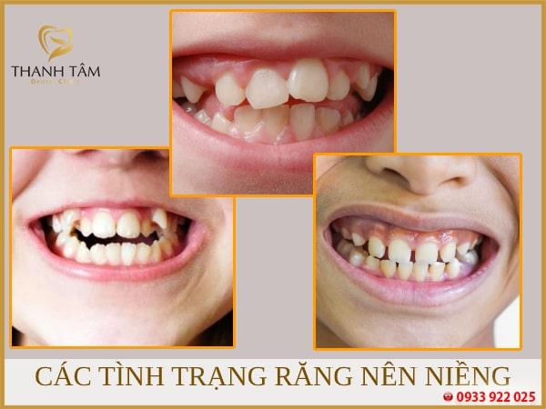 Các tình trạng răng cần niềng