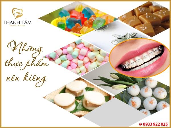 niềng răng cần kiêng gì