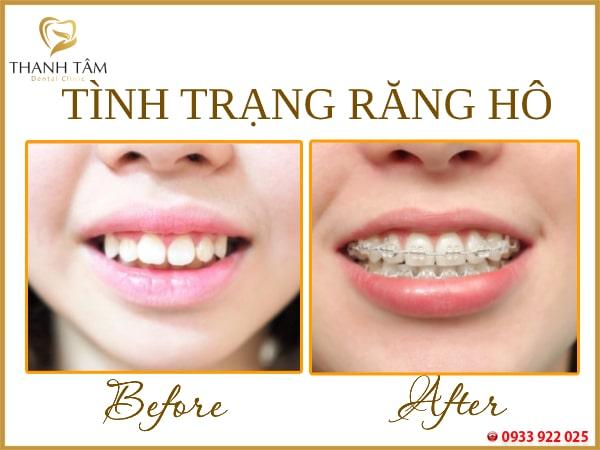 Chuyên khắc phục tình trạng răng hô
