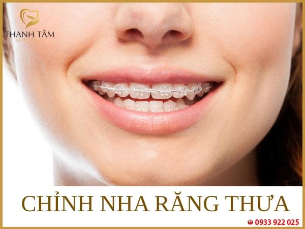 Cải thiện răng thưa