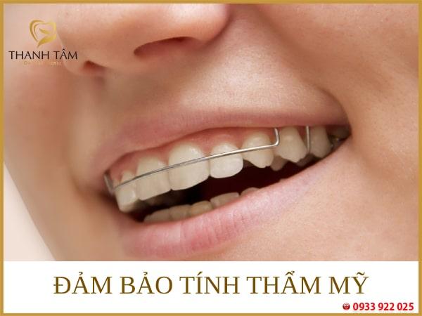 Đảm bảo tính thẩm mỹ cho răng