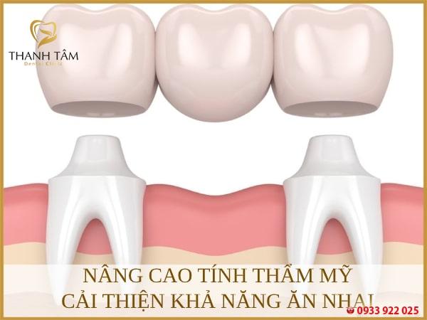 Cầu răng là gì?
