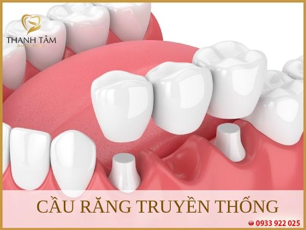 Cầu răng truyền thống