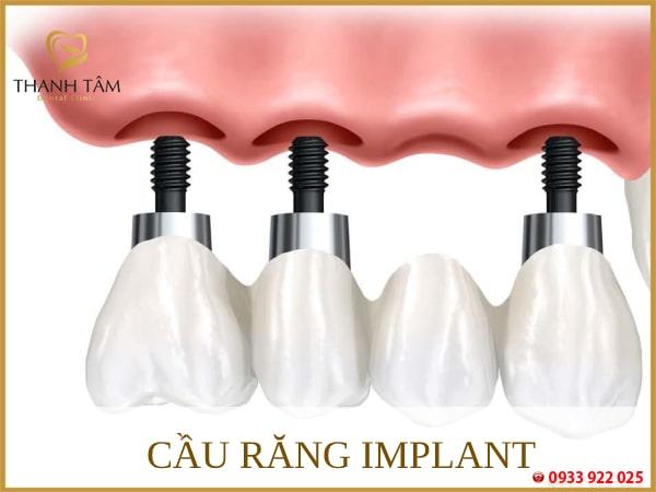 Cầu răng Implant