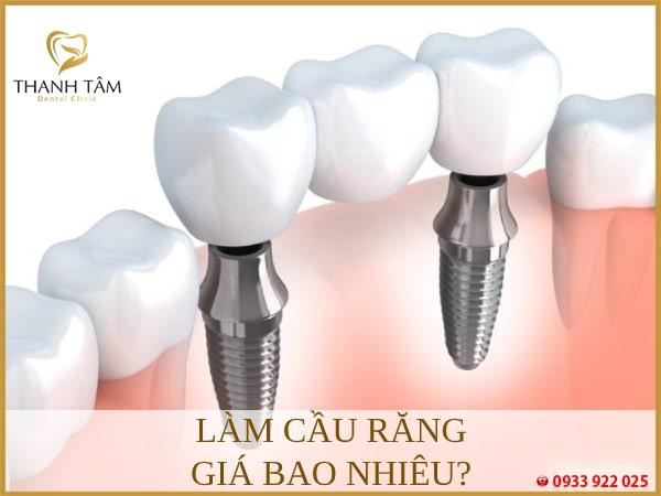 Chi phí làm cầu răng phụ thuộc nhiều vấn đề
