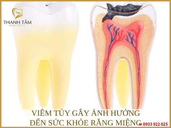 Ảnh hưởng đến sức khỏe răng miệng