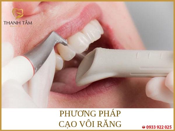 Phương pháp cạo vôi răng