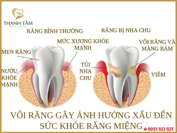 Cạo vôi răng là gì